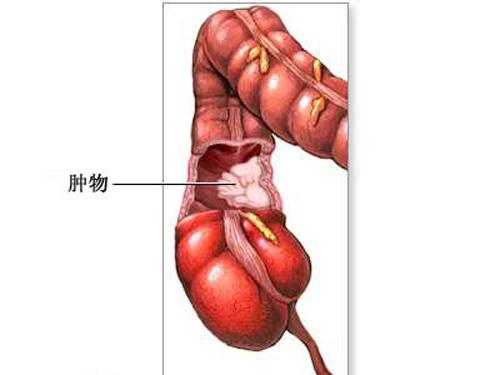 利用激光开展各种体表肿瘤切除术,微创腋臭术;利用液氮冷冻技术进行取